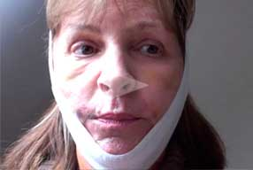 Facelift & Neck Lift Video