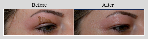 Female face, Before and After Non-Surgical Blepharoplasty Treatment, eyes, oblique view