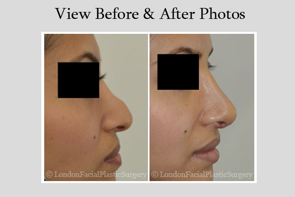 Female face, Before and After Ethnic Rhinoplasty Treatment, nose, side view