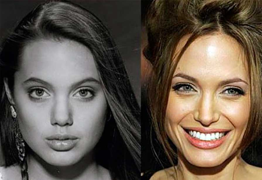 Celebrity Rhinoplasty