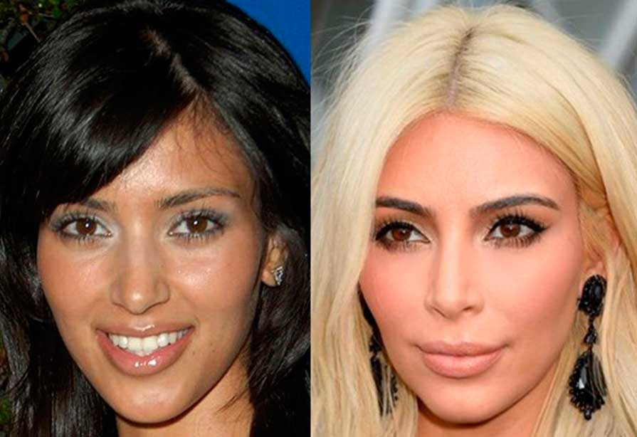 Watch Video: Celebrity Ethnic Rhinoplasty