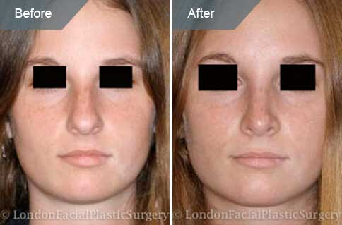 Female face Before and After Nose Re-shaping Treatment, nose, front view, patient 1