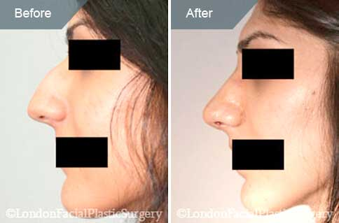 Female face Before and After Nose Re-shaping Treatment, nose, left side view, patient 2