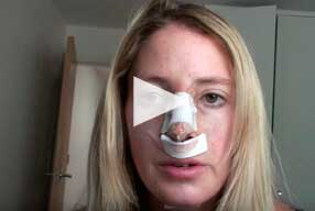 Rhinoplasty & Chin Implant Video Diary –Same Day of surgery 17th July Hours after surgery