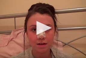Rhinoplasty & Septoplasty Video Diary –Day 3 After surgery