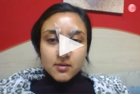 11 Ethnic Rhinoplasty Video Diary Day 11 After surgery - video