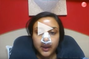 3 Ethnic Rhinoplasty Video Diary Day 2 After surgery - video