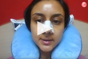 4 Ethnic Rhinoplasty Video Diary Day 3 After surgery - video
