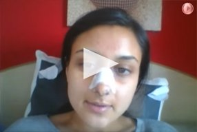 7 Ethnic Rhinoplasty Video Diary Day 6 After surgery - video