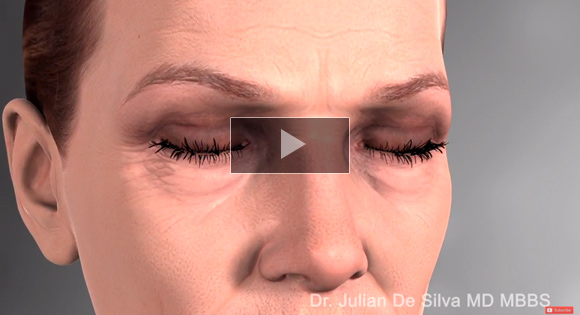 How is Lower Blepharoplasty/ Eyelid Surgery completed?