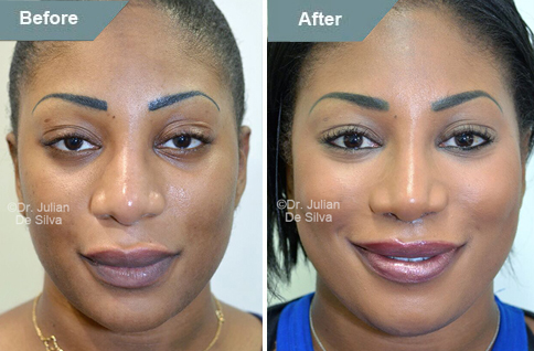 Woman's face, After Lip Augmentation Reduction, lips, front view, patient 1