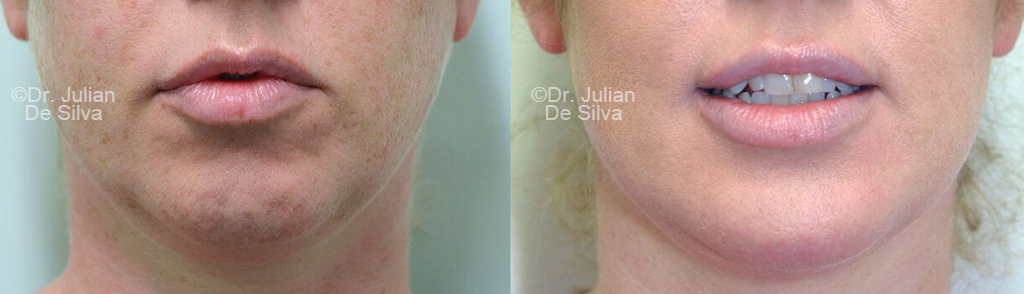 Woman's face, before and after Chin Implants Treatment - chin, front view, patient 2
