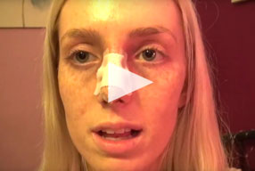 Closed Rhinoplasty Video Diary –Day 1 After Surgery, 3 of 10