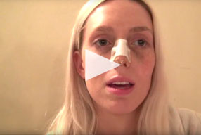Closed Rhinoplasty Video Diary –Day 3 After Surgery, 5 of 10