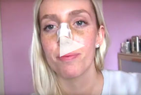 Closed Rhinoplasty Video Diary –Day 4 After Surgery, 6 of 10
