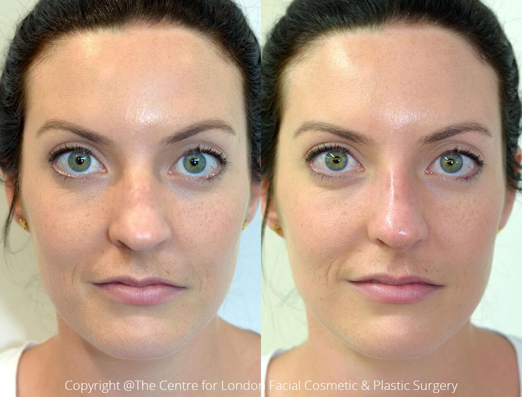 Non-Invasive Nose Job, Liquid Rhinoplasty, West London | Dr