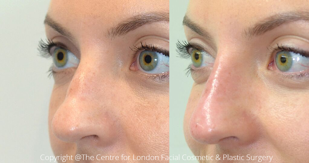 Non-Invasive Nose Job, Liquid Rhinoplasty, West London | Dr  De Silva