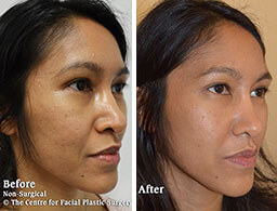 Female face, Before and After Non Surgical Treatment, cheek filler Enhancement, side view, patient 1