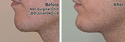 Male face, Before and After Non Surgical Treatment, chin and jaw line filler enhancement, side view, patient 2