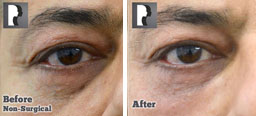 Patient eyes, Before and After Non Surgical Treatment, Tear Trough filler, front view, patient 5