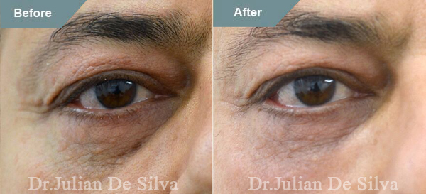 Male face, before and after Lower Eyelid Treatments, eyelid, patient 1