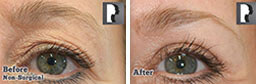 Woman's eyes, Before and After Non Surgical Laser Laser Resurfacing Treatment, eyes area, side view, patient 9