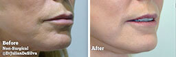 Female face, Before and After Non Surgical Laser Laser Resurfacing Treatment, lips, side view, patient 8
