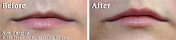 Female face, Before and After Non Surgical Treatment, lip filler, front view, patient 4