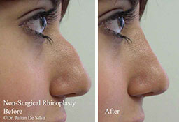 Female face, Before and After Non Surgical Rhinoplasty/LiquidNose-Job Treatment, nose, side view, patient 6