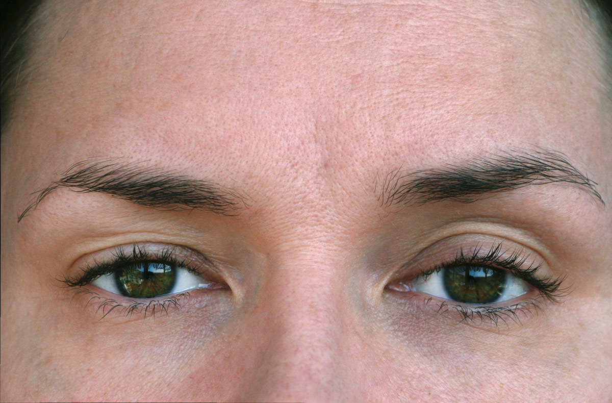 Upper Blepharoplasty Surgery - female model
