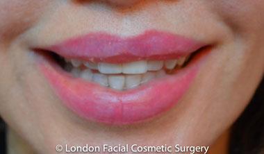 Lip Augmentation & Reduction Before 15