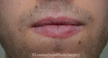 Lip Augmentation & Reduction Before 14