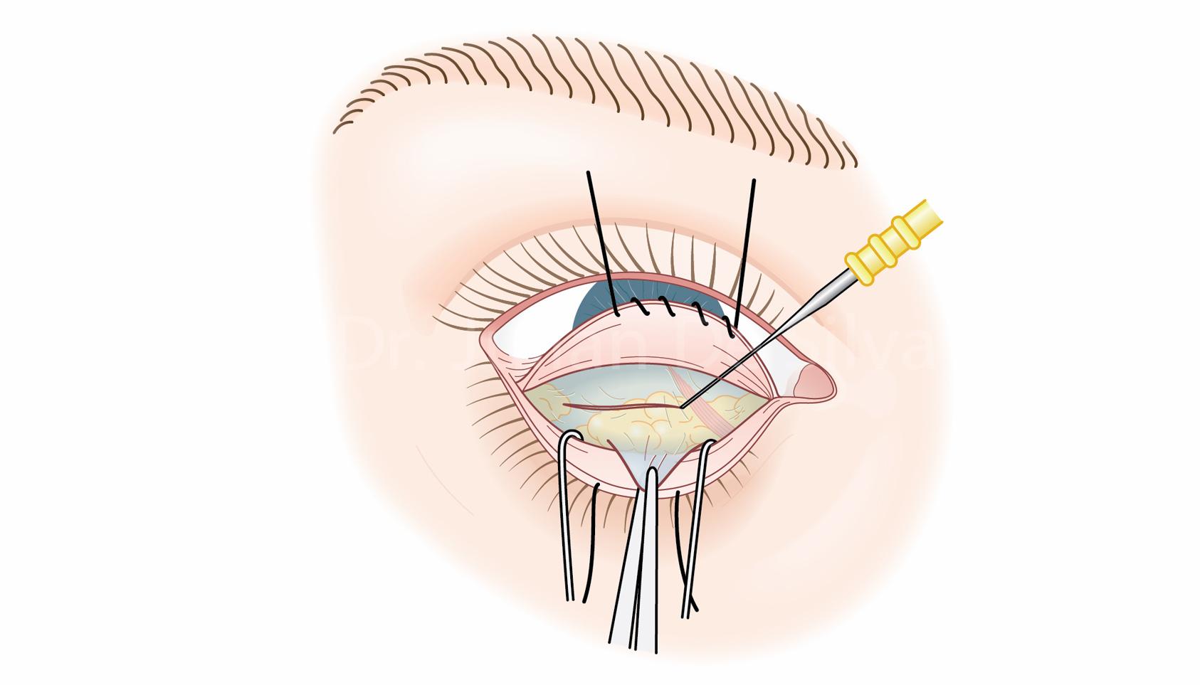 Lower Blepharoplasty Surgery: Step 2
