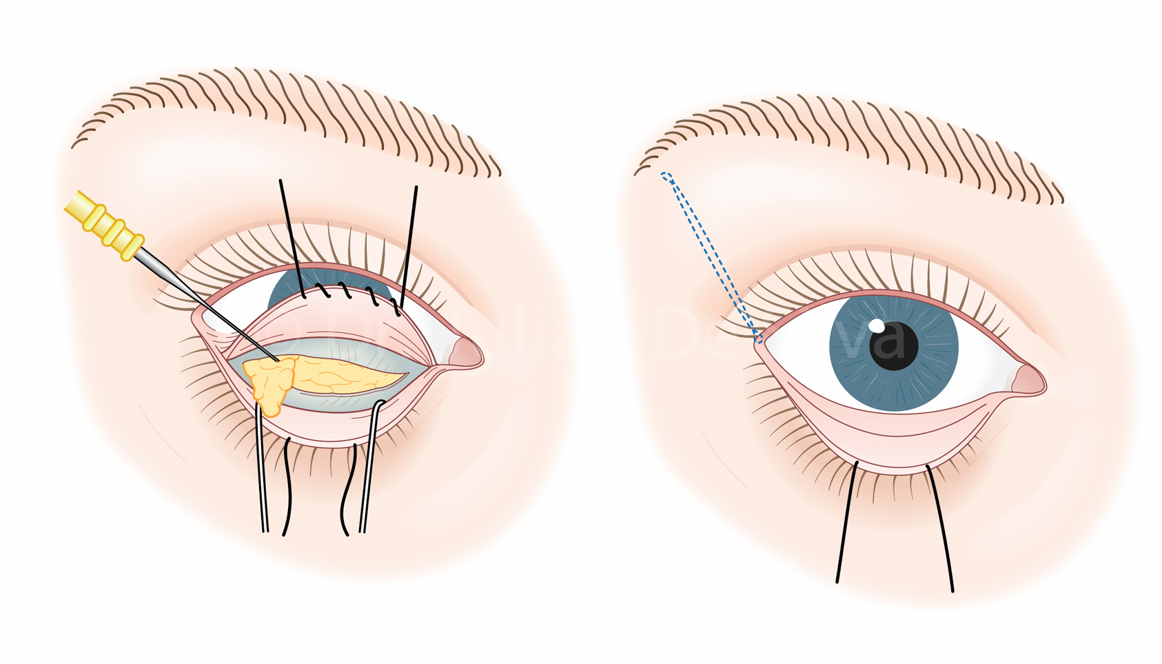 Lower Blepharoplasty Surgery: Step 3