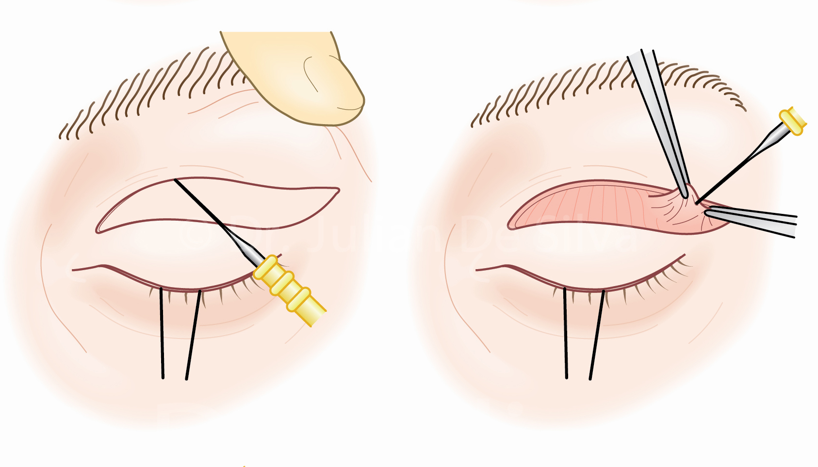Upper Blepharoplasty Surgery: Upper Bleph Steps-2
