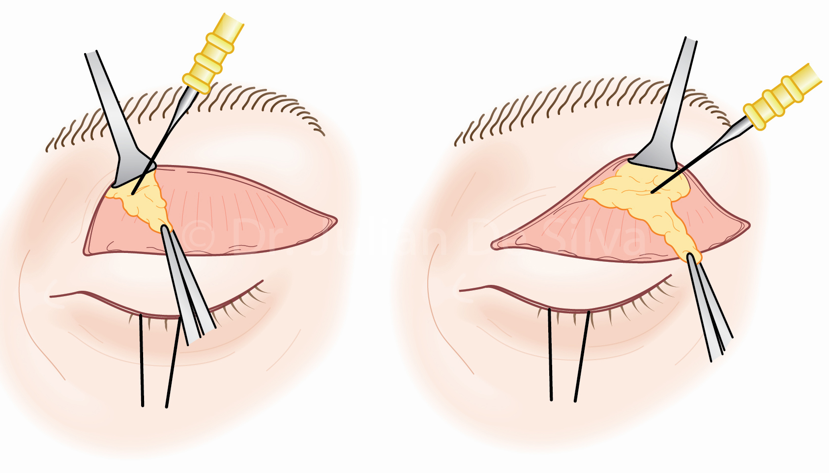 Upper Blepharoplasty Surgery: Upper Bleph Steps-3