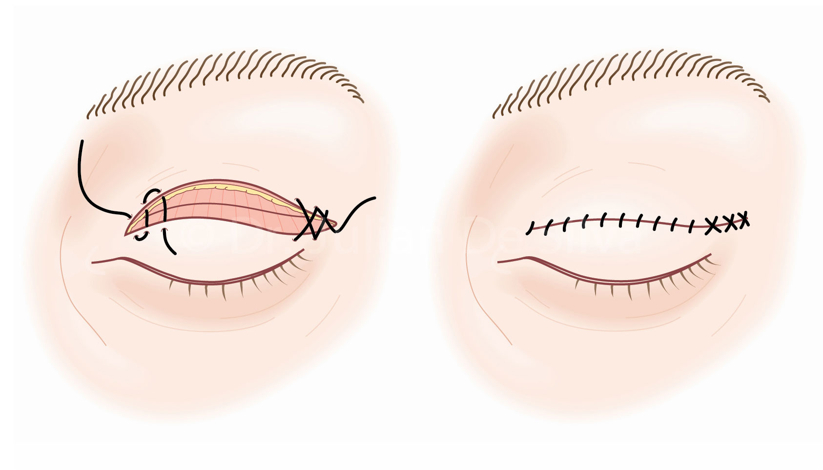 Upper Blepharoplasty Surgery: Upper Bleph Steps-4