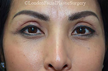 Woman's face, After Lower Blepharoplasty Surgery, eyelids, front view