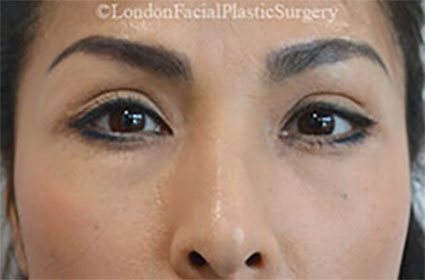 Woman's face, Before Lower Blepharoplasty Surgery, eyelids, front view