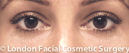 Woman's face, after Blepharoplasty treatment, front view
