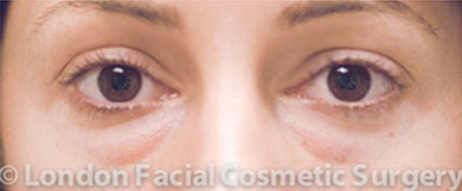 Woman's face, before Blepharoplasty treatment, front view