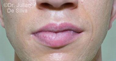 Lip Augmentation & Reduction After 2