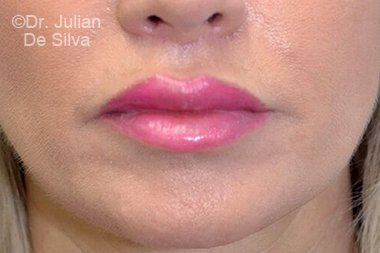 Lip Augmentation & Reduction After 8