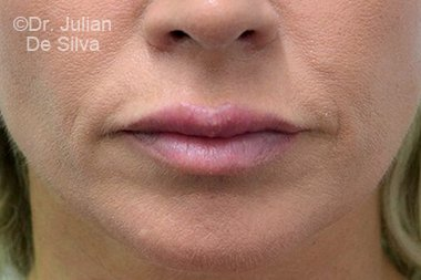 Lip Augmentation & Reduction Before 8