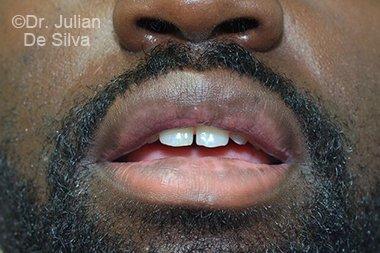 Lip Augmentation & Reduction After 7