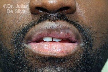 Lip Augmentation & Reduction Before 7