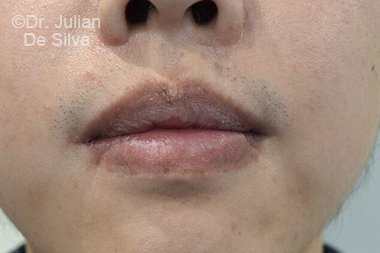 Lip Augmentation & Reduction Before 6
