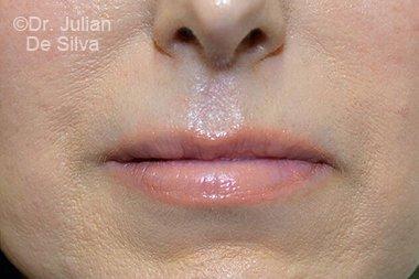 Lip Augmentation & Reduction After 5