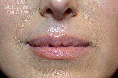 Lip Augmentation & Reduction Before 5