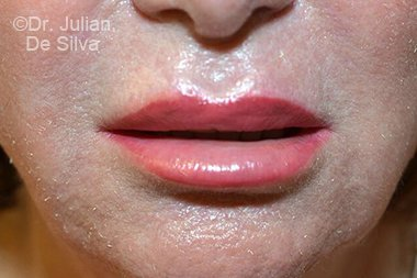 Lip Augmentation & Reduction After 3